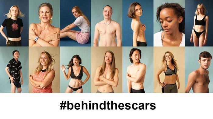 BehindTheScarsKS